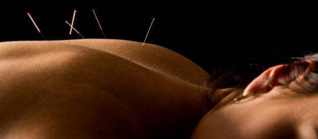 Acupuncture - Châm cứu