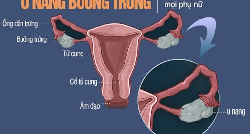 U nang buồng trứng: Các loại, Triệu chứng, Điều trị, Phòng ngừa